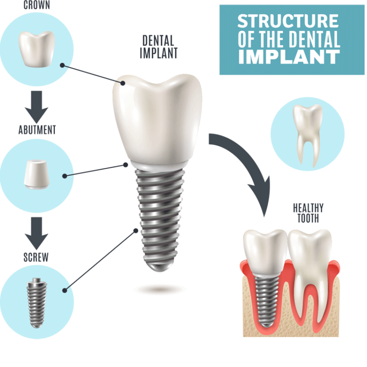 San Jose Dental Implants