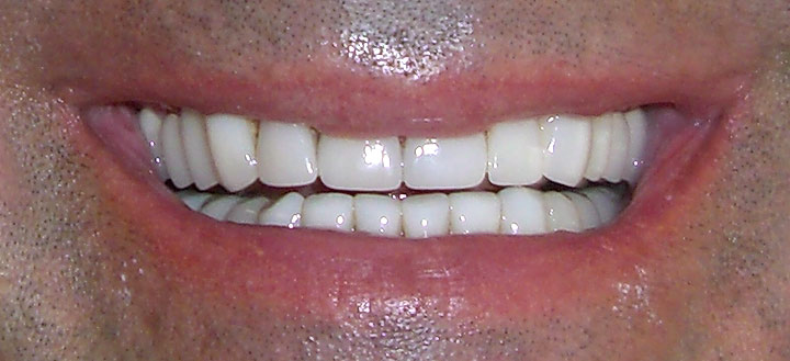 After Porcelain Veneers San Jose