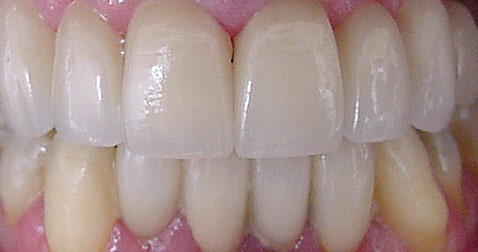 Porcelain Teeth Veneers San Jose