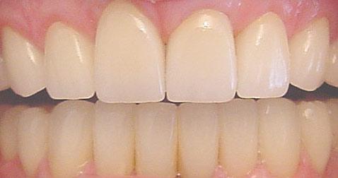 Tooth Veneers San Jose