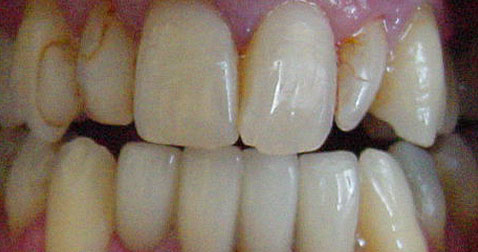 Porcelain Dental Veneers San Jose
